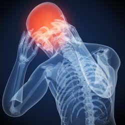 Headache Unley